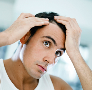 Effective Hair Loss Management